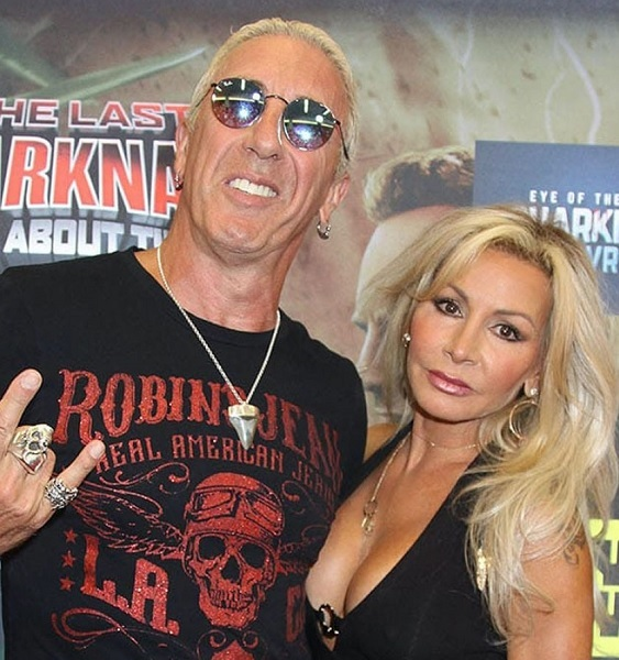 Did Dee Snider Wife Had A Plastic Surgery? Suzette Snider Pictures